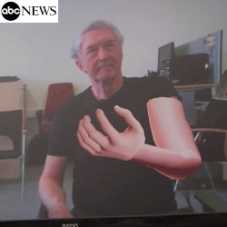 ABC News: Virtual Reality Gives Amputee Real-Life Relief - 26/2/2014