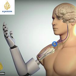 Al Jazeera English: Bionic Arm - A Pioneering Union Between Man and Machine - The Cure - 18/7/2016
